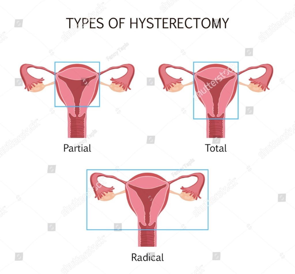 Three examples of what parts portraying where a partial, total, and radical hysterectomy take place. Partial is is removal of the uterus, total is the removal of the uterus and some of the vaginal canal and radical is the removal of uterus, fallopian tubes and ovaries.